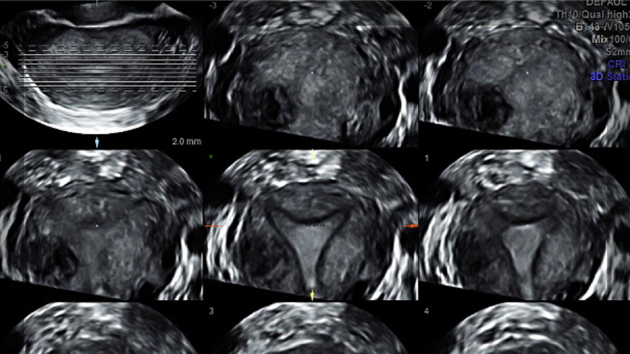 Female Genital Anomalies, ESHRE ESGE Consensus on Diagnosis, HUMREP 2016